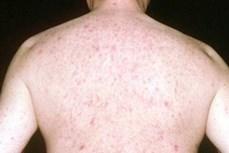 Báo động gia tăng bệnh ung thư da ở nam giới