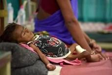 """Chế độ ăn """"kỳ diệu"""" cho hàng triệu trẻ em suy dinh dưỡng"""