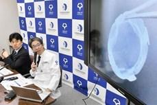Phương pháp mới sử dụng tế bào iPS để điều trị bệnh về giác mạc
