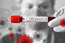 Dịch COVID-19: Các nhà khoa học tìm ra điểm yếu của virus