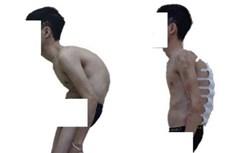 """Nắn chỉnh biến dạng cột sống thành công cho bệnh nhân """"siêu gù"""""""