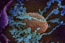 Thụy Sĩ phát triển cảm biến sinh học phát hiện virus SARS-CoV-2 trong không khí