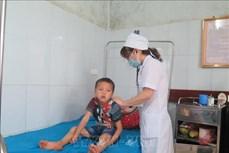 Tuyên Quang: Bốn trẻ nhỏ ngộ độc do ăn thịt cóc
