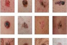 Phương pháp mới hứa hẹn điều trị hiệu quả ung thư hắc tố da