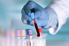 Anh thử nghiệm phương pháp xét nghiệm máu phát hiện sớm bệnh ung thư