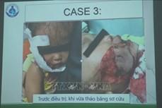 Thành phố Hồ Chí Minh: Cảnh báo tai nạn thương tích trẻ em do chó cắn