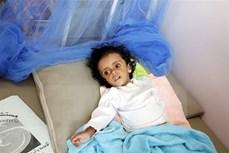 越南与联合国安理会:越南呼吁携手遏制也门饥荒危机