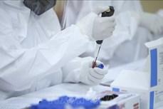 6月25日上午越南新增91例新冠肺炎确诊病例 本土病例79例
