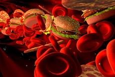 Phát hiện mới về bệnh tự kỷ liên quan đến chứng mỡ máu cao