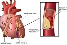 Báo động tình trạng thừa cholesterol gây các bệnh lý về tim mạch
