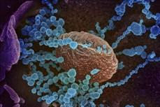 Thiết bị đo nồng độ CO2 có thể cảnh báo nguy cơ lây lan virus SARS-CoV-2