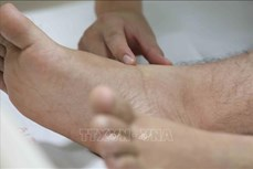 Đắk Nông tuyên truyền về chủ động phòng, chống bệnh sốt xuất huyết